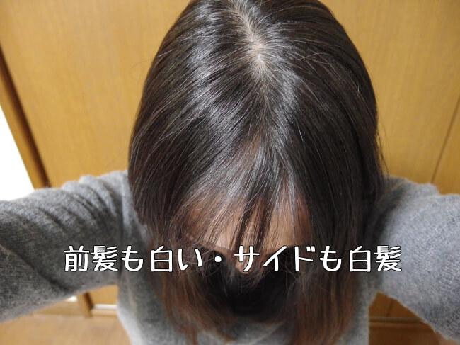 前から見た白髪の状態