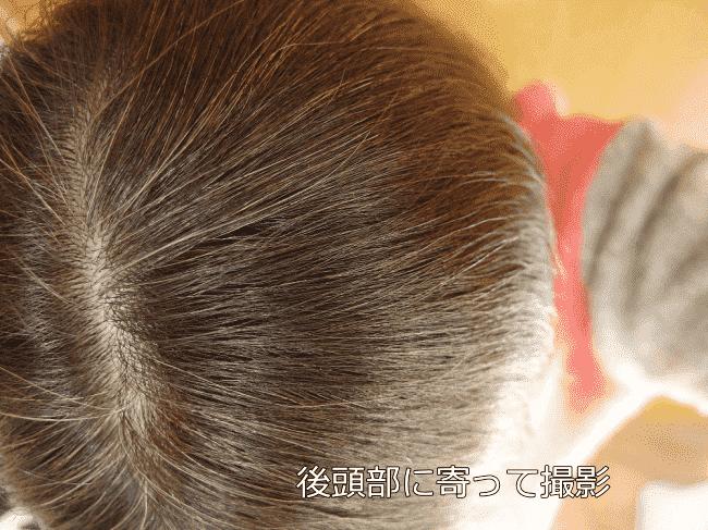 ルプルプ白髪染めトリートメント体験