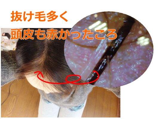 ジアミンアレルギーのヘアカラー
