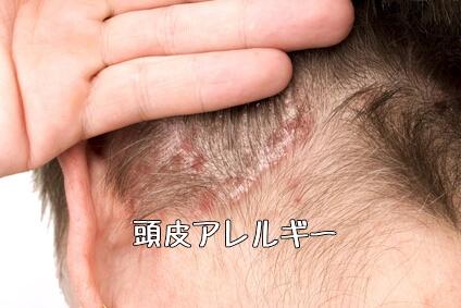 頭皮アレルギー