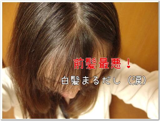 前髪の生え際の白髪染めカラーリング