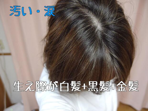 短い髪の白髪染め