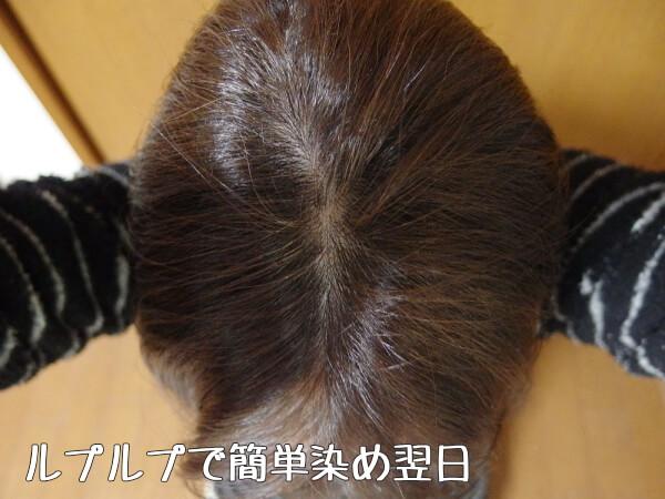 ルプルプ白髪染め 効果