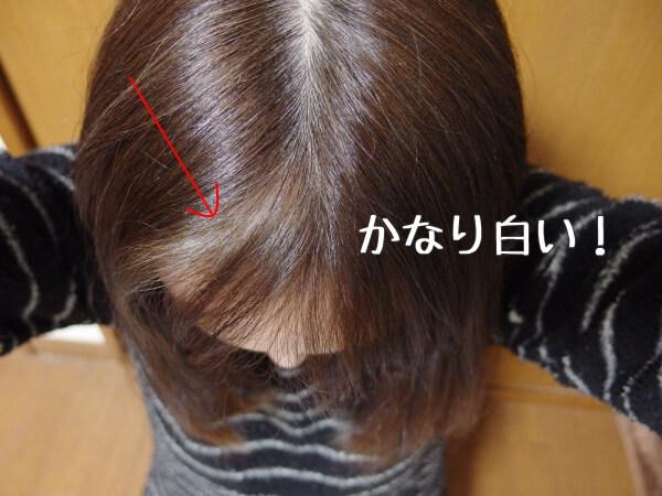 前髪の白髪